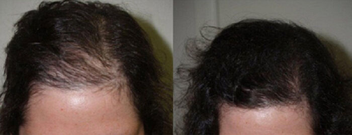 acell prp hair transplant before after