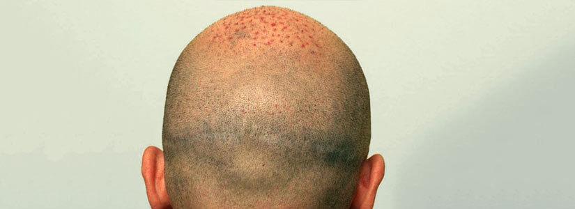 Scalp micropigmentation in dubai