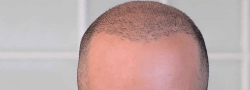 Scalp micropigmentation in dubai