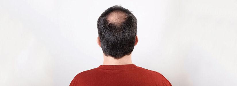 hair-loss-clinic