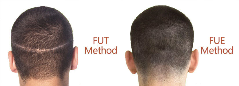 Forehead Reduction Hair Transplant Manchester
