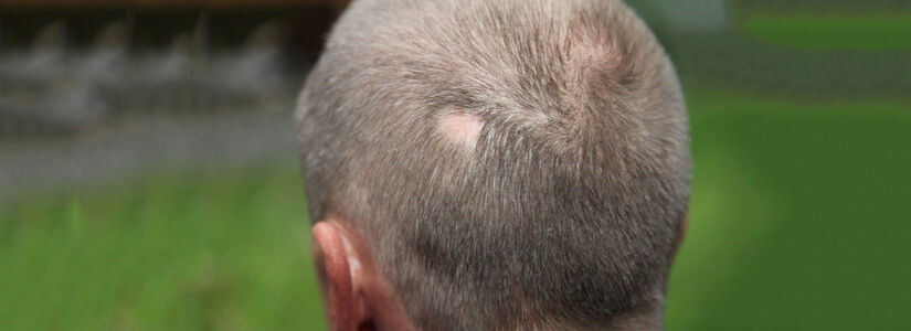 alopecia treatment in dubai
