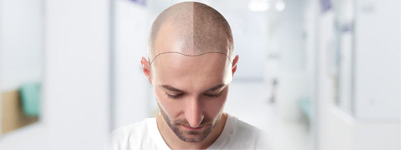 Fighting Baldness With Fue hair transplant in Dubai, Abu Dhabi & Sharjah