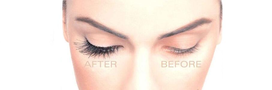 eyelash-hair-transplant