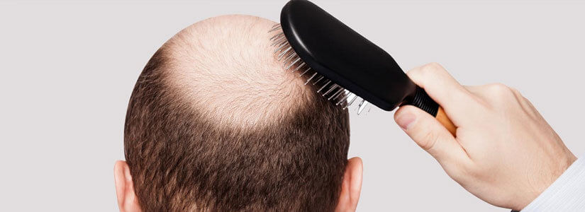 hair-growth-after-hair-transplant