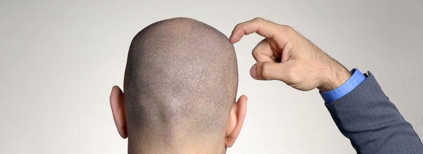hair transplant in dubia