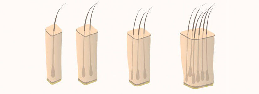 micrografting-hair-transplant