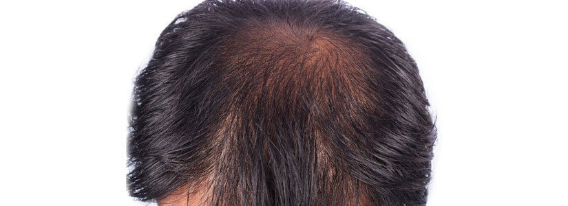 hair-thining