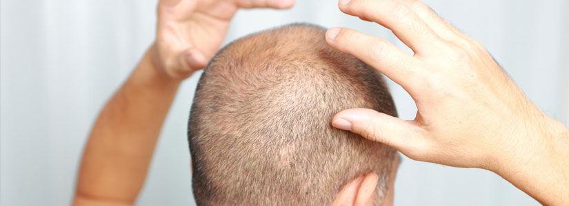cictrical-alopecia