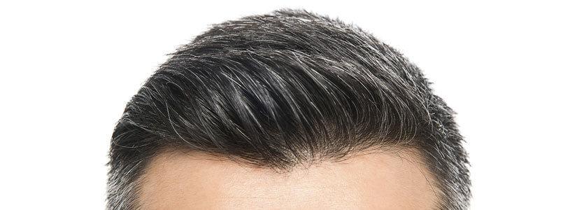 hair-transplant-post-op-care