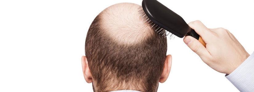 Involutional Alopecia vs. Androgenic Alopecia in Dubai