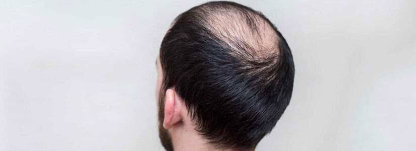 alopecia areata treatment in dubai