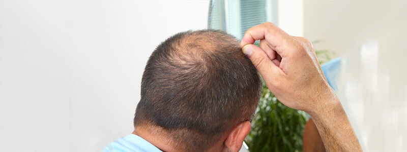 Man Suffering from alopecia