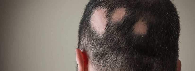 Alopecia Areata What are your options