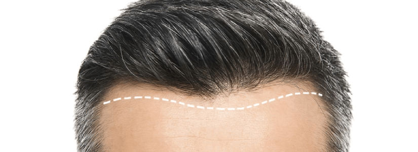 How Many Grafts Do I need for a Good looking Hair Transplant?