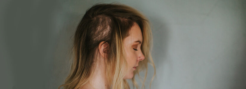 How Stress and Anxiety Can Cause Hair Loss