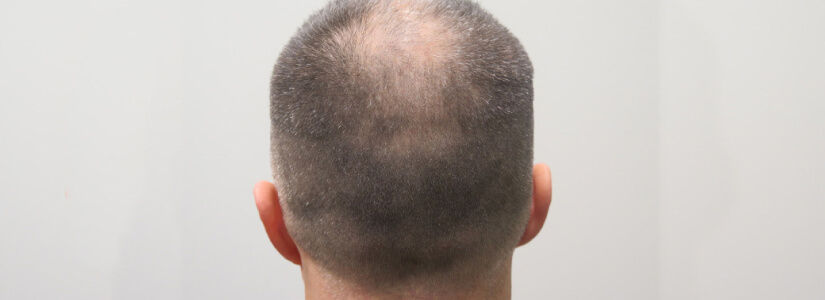 Should I expect to lose my native hair immediately after a hair transplant