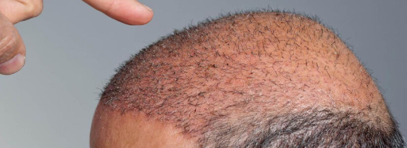 The Facts about Shock Loss Following Hair Restoration Surgery
