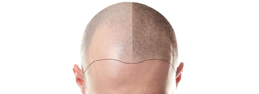 Scarring from a hair transplant