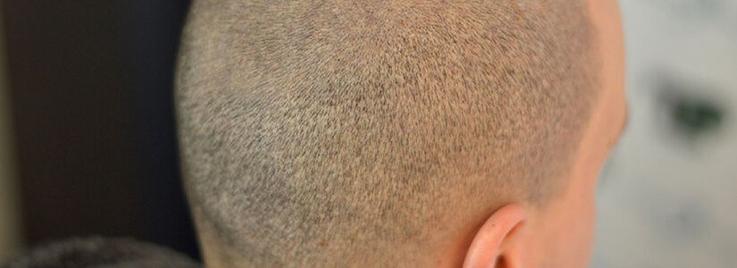 latest hair transplant methods