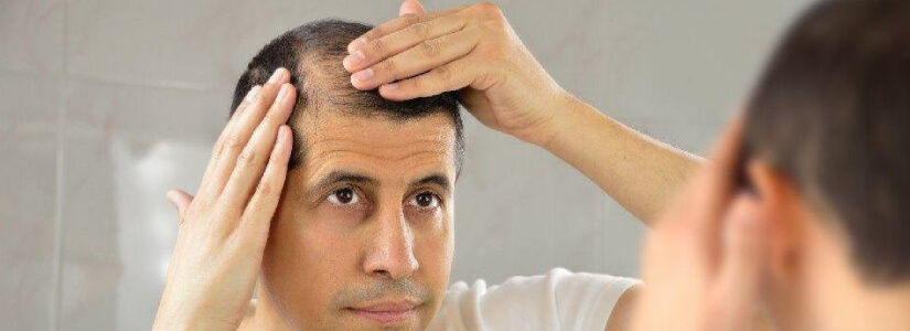 Early Signs That Indicate You Are Going Bald