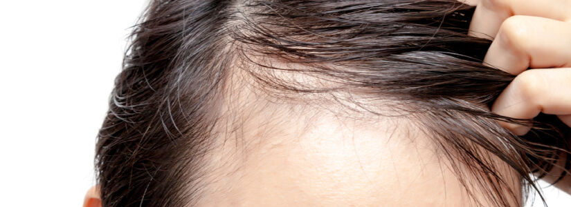 How To Stop A Receding Hairline And Regrow Hair?