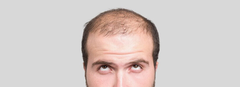 Genetic hair loss