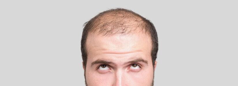 Genetic hair loss