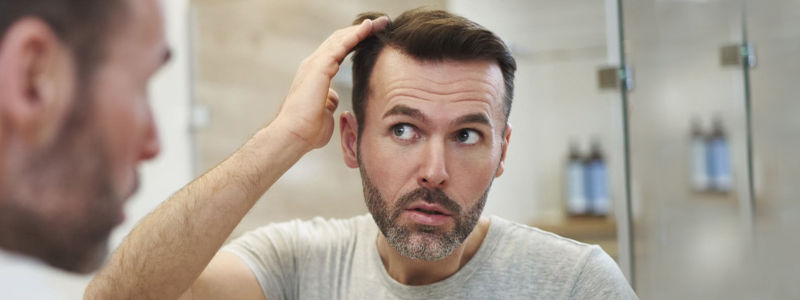hair-loss-treatment-in-dubai