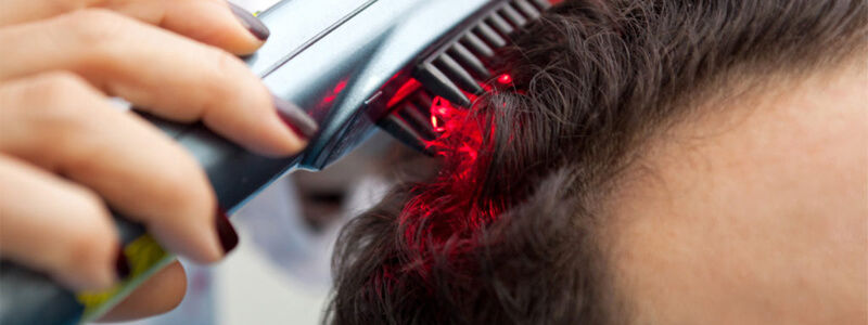 Laser Hair Therapy for Hair Loss in Dubai, Abu Dhabi & Sharjah