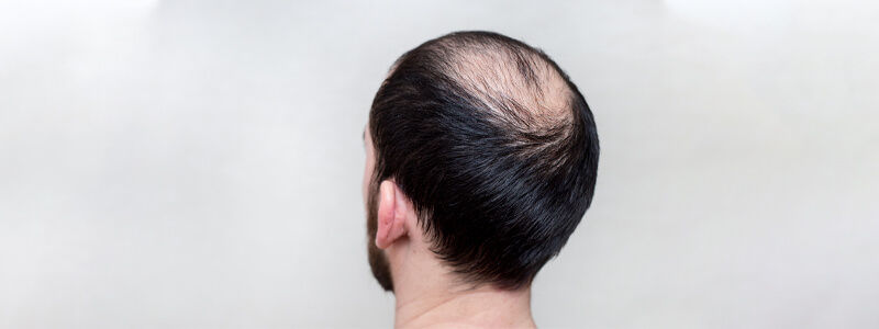 Hair Fillers for Baldness in Dubai, Abu Dhabi & Sharjah