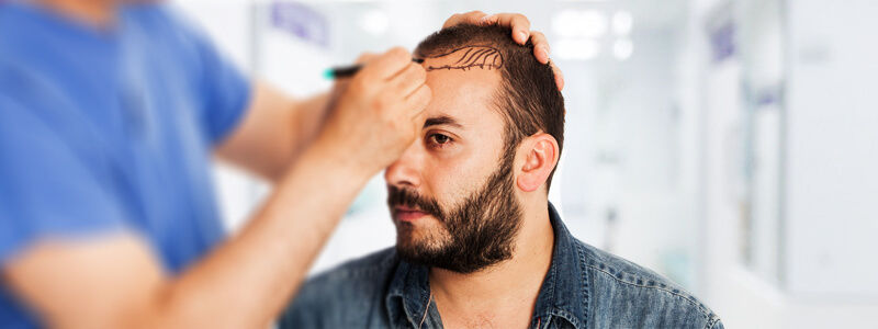 How to Find Right Hair Transplant Surgeon in Dubai & Abu Dhabi?