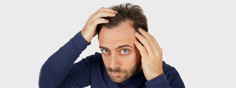 Does Dandruff Cause Hair Loss - How to Stop?