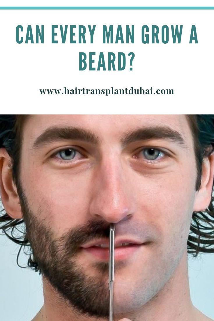 Can Every Man Grow A Beard Hair Transplant Dubai