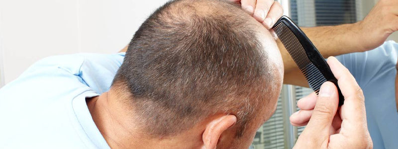What Are the Best Vitamins for Hair Loss?