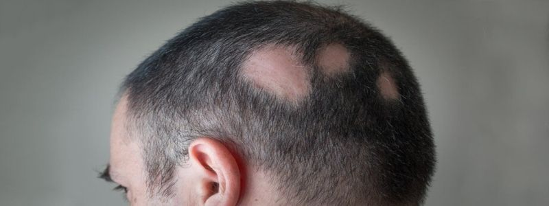 How Long Does it take for Alopecia Treatment to fully Cure