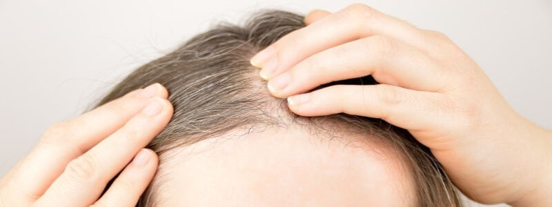 Why doctors recommend hair transplant for female hairline