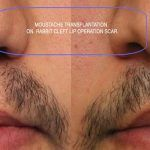 Beard-Hair-Transplant-Before-and-After