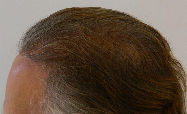 micro-grafts-hair-transplant-Dubai1 (1)