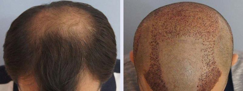 Hair Transplant Reviews14