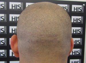 Hair-Transplant-Scar11-300x221 (1)