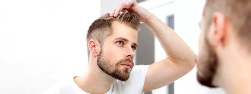 Male hair transplant in Dubai