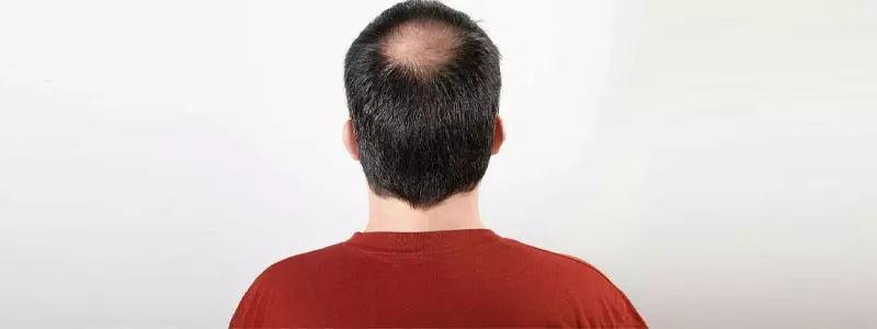 Crown-hair-transplant