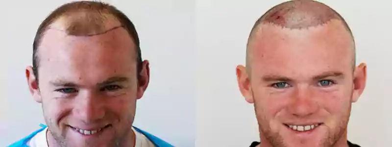 Hybrid hair transplant