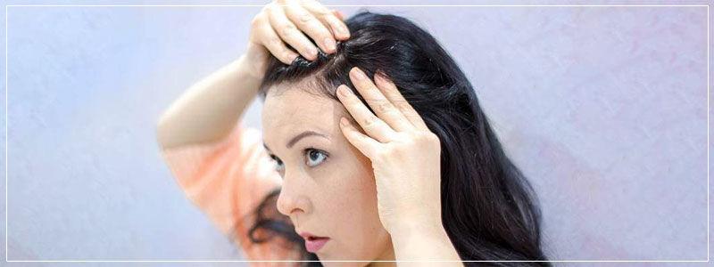 Female hair transplant in Dubai