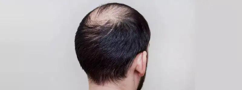 FUT hair transplant in Dubai