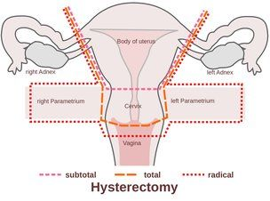 Diagram of hysterectomy types