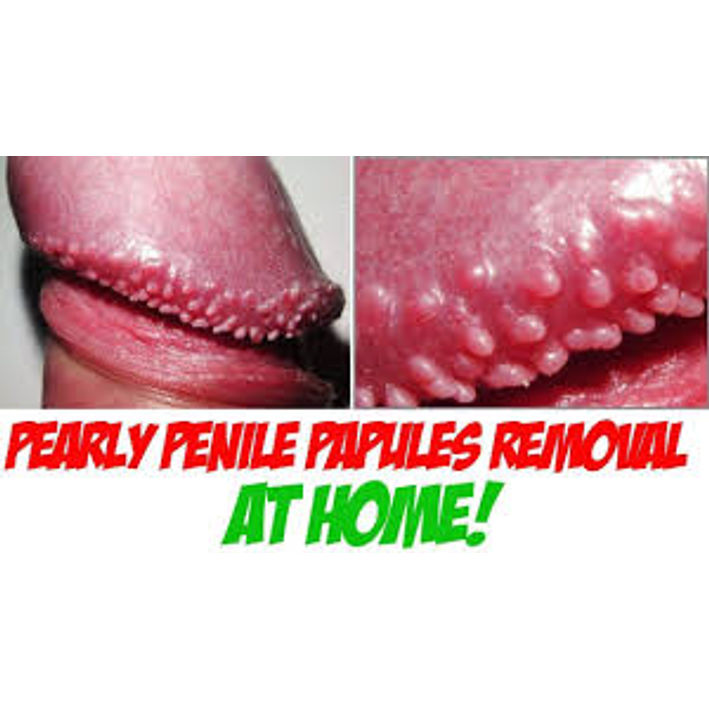 Papules go away penile What Are