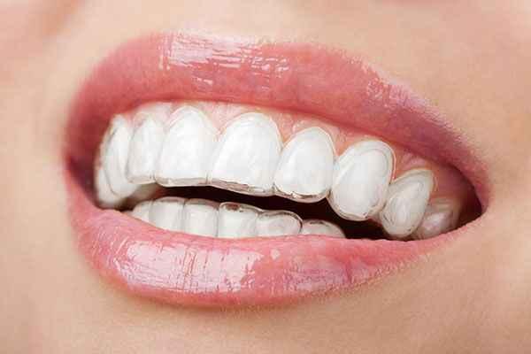Innovative Dental - Dentists In Moonee Ponds 3039