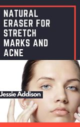 NATURAL ERASER FOR STRETCH MARKS AND ACNE